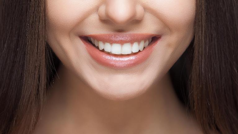 woman smiling without cavities | palos heights il dentist