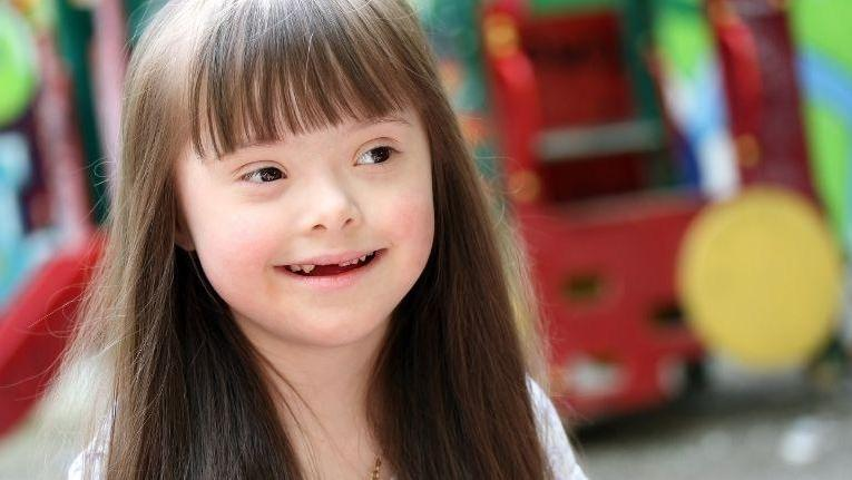 little girl with Down Syndrome smiling | Children's Dentistry in Palos Heights IL