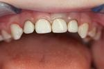 Pediatric-Restorative-Dentistry-After-Image