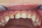 Pediatric-Restorative-Dentistry-Before-Image